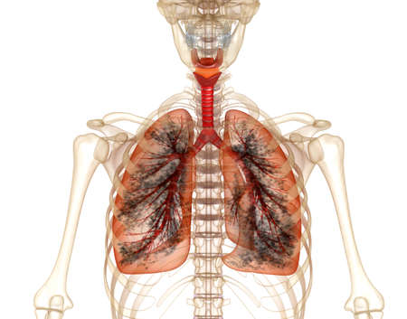 chest cavity: Diseased lungs, Medical accurate 3D illustration Stock Photo