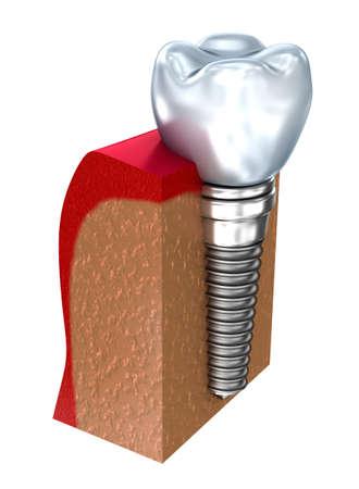 fixture: Dental implant - education model. 3D render Stock Photo