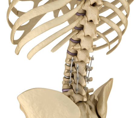 fixation: Spinal fixation system - titanium bracket. Medically accurate tooth 3D illustration
