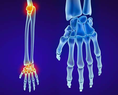 luxacion: anatomía de la mano humana. ilustración médica precisa en 3D