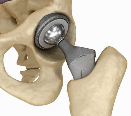 Hip replacement implant installed in the pelvis bone. Medically accurate 3D illustration Stock Photo