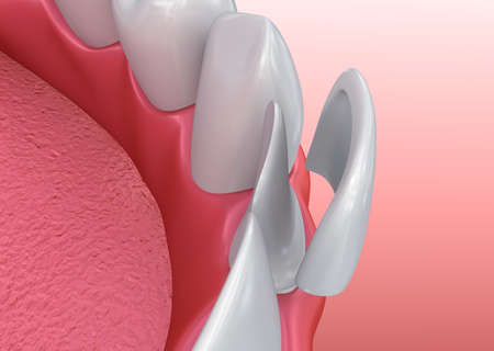 Dental Veneers: porseleinvernisje installatieprocedure. 3D illustratie