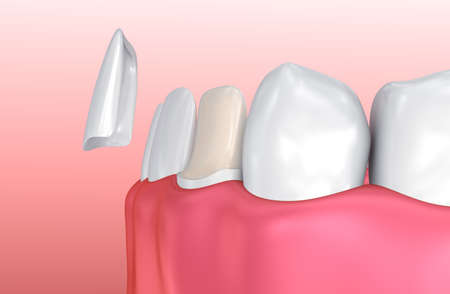 recreate: Dental Veneers: Porcelain Veneer installation Procedure. 3D illustration