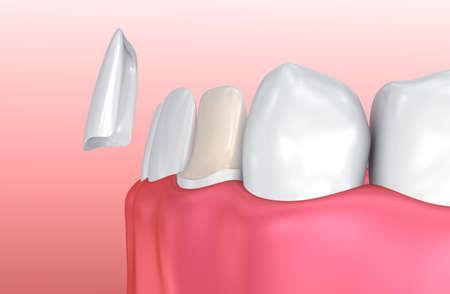 prothèse dentaire: Facettes dentaires: Porcelain Veneer procédure d'installation. illustration 3D