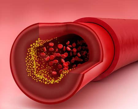 Cholesterol plaque in blood vessel, 3D illustration Banque d'images