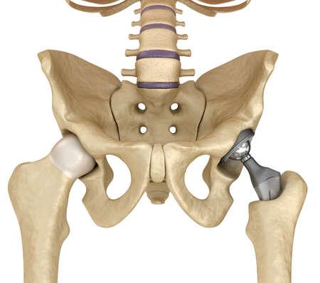 Heupprothese implantaat in het bekken bot geïnstalleerd. Medisch nauwkeurige 3D illustratie Stockfoto