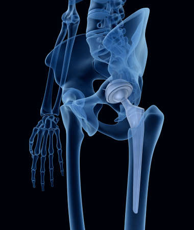 hip: Hip replacement implant installed in the pelvis bone. X-ray view. Medically accurate 3D illustration