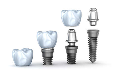 isolated on white: Tooth Implants set isolated on white background 3D illustration