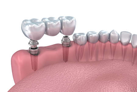 implanted: Lower teeth and dental implant transparent render isolated on white. 3D illustration