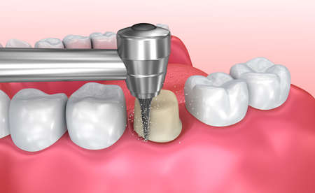 Dental crown installation process, Medically accurate 3d illustration Banco de Imagens