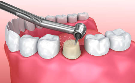 Dental crown installation process, Medically accurate 3d illustration Stock Illustration - 74819104