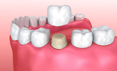 Dental corona proceso de instalación, médicamente precisa 3d ilustración