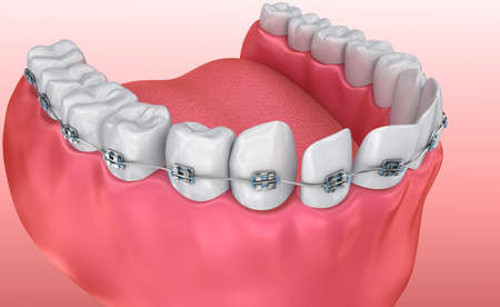 toothache: Teeth with braces Alignment process. Medically accurate 3d illustration