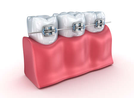 doctors and patient: Teeth with braces Alignment process. Medically accurate 3d illustration