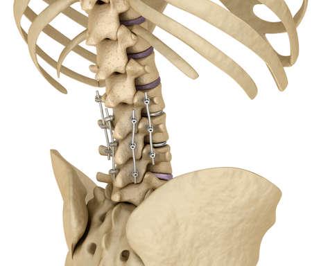 Spinal système de fixation - support de titane. dent Médicalement précis illustration 3D