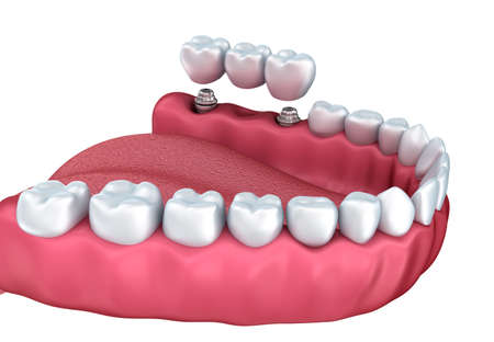 Tooth implant instalation process, Medically accurate 3D illustration white style Stock fotó