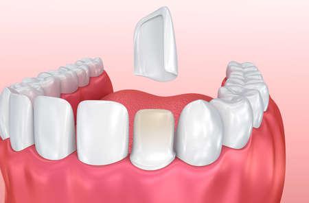 Dental Veneers: Porcelain Veneer installation Procedure. 3D illustration