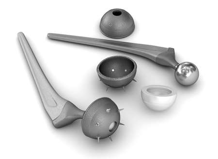 Heupprothese implantaat geïsoleerd op wit. Medisch nauwkeurige 3D-afbeelding