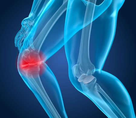 Dolor de rodilla Ataque, hombre que sufre de rodilla espinal. Ilustración 3D