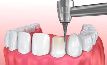 치과 베니어판 : 도자기 한척 설치 절차. 3D 그림 스톡 콘텐츠