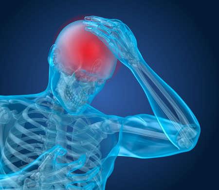 Head pain Attack, man suffering from brain pain. 3D illustration Foto de archivo