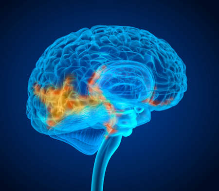 Human brain tumor X-ray scan, Medically accurate 3D illustration Stock Photo