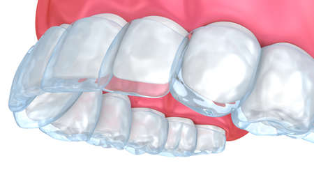 Teeth whitening process. Medically accurate tooth 3D illustration