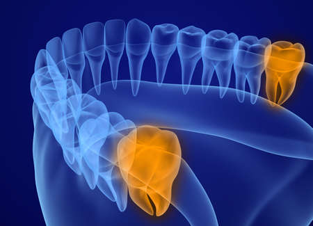 Wisdom tooth xray view. Medically accurate tooth 3D illustration