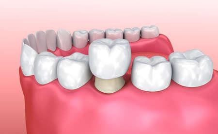 Processo di installazione della corona dentale, illustrazione medicamente accurata 3d Archivio Fotografico
