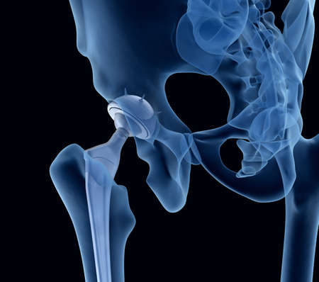 acetabulum: Hip replacement implant installed in the pelvis bone. X-ray view. Medically accurate 3D illustration