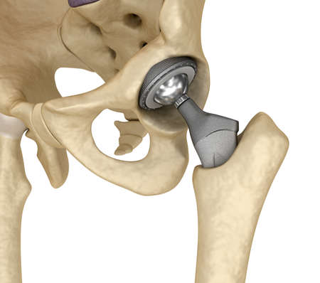 Hip replacement implant installed in the pelvis bone. Medically accurate 3D illustration Stok Fotoğraf