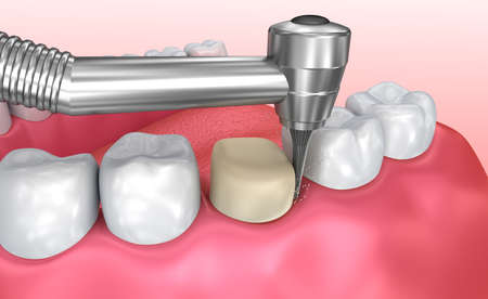 buckler: Dental crown installation process, Medically accurate 3d illustration Stock Photo