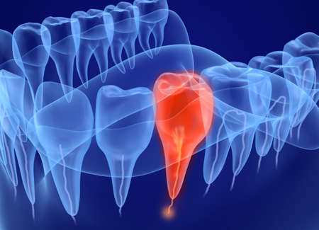 Problem teeth xray view. Medically accurate tooth 3D illustration