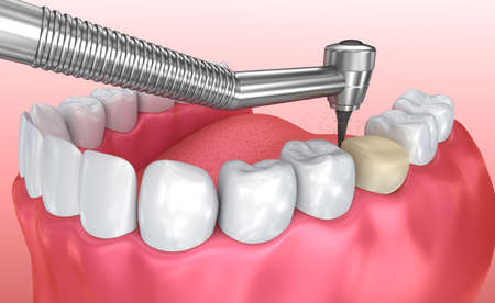 Dental crown installation process, Medically accurate 3d illustration Stock Photo