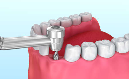 titanium: Tooth implant installation process, Medically accurate 3D illustration Stock Photo