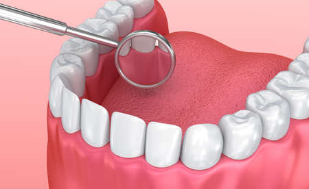 Teeth inspection with mirror. Medically accurate tooth 3D illustration