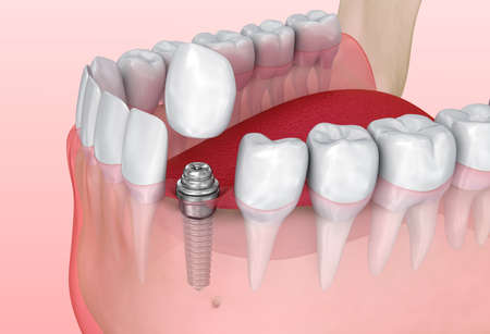 Tooth implant installation process, Medically accurate 3D illustration Imagens