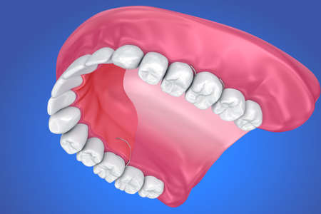 pain: Single Missing Tooth - Removable partial denture. 3D illustration