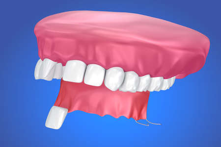 Single Missing Tooth - Removable partial denture. 3D illustration
