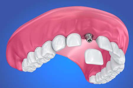 Zahnimplantat und Kroneninstallationsprozess. Medizinisch genaue 3D-Darstellung Standard-Bild - 85704896