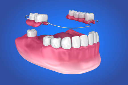 Removable partial denture. Medically accurate 3D illustration