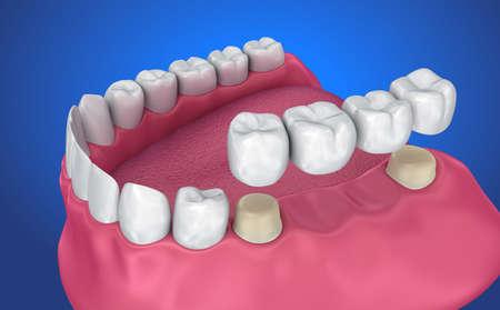 歯は固定橋を支えた。医学的に正確な3D イラストレーション 写真素材