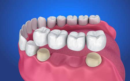 歯には、固定ブリッジがサポートされています。医学的に正確な 3 D イラスト 写真素材