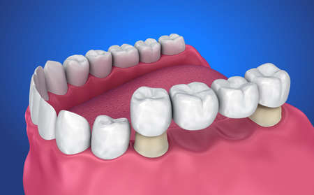 Tooth supported fixed bridge. Medically accurate 3D illustration