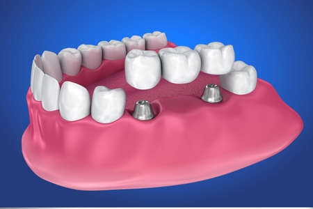 implant supported fixed bridge. Medically accurate 3D illustration Stock Photo