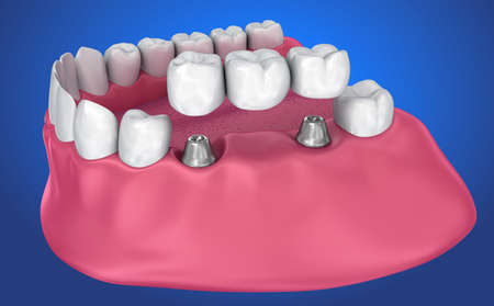 implant supported fixed bridge. Medically accurate 3D illustration Reklamní fotografie
