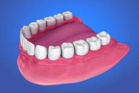All missing teeth - removable full denture. 3D illustration