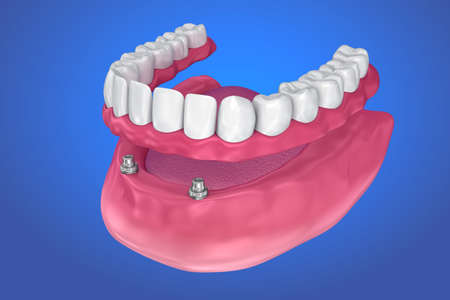 Overdenture to be sealed on ball attachments. 3D illustration
