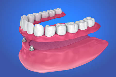 Overdenture to be sealed on ball attachments. 3D illustration Banco de Imagens - 85705188