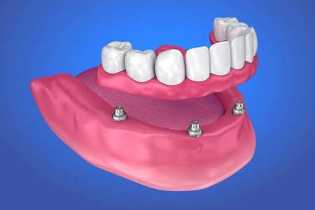 Fixed bridge on implants. Medically accurate 3D illustration Stok Fotoğraf - 85704871